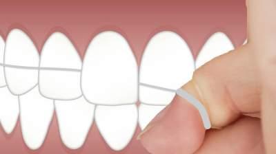 Стало известно, какую опасность может содержать в себе зубная нить