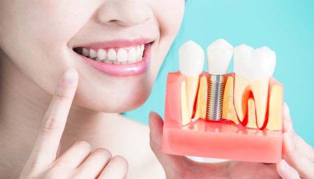 Имплантация зубов от профессионалов