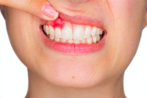 Безболезненное лечение кисты зуба