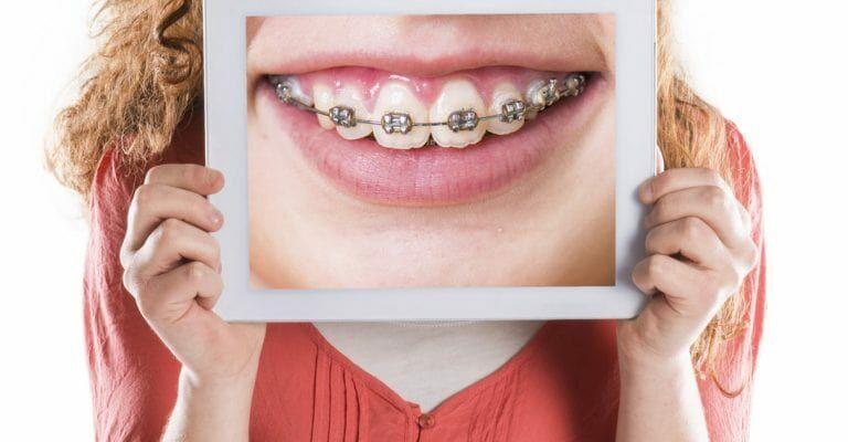 Профессиональная ортодонтическая помощь