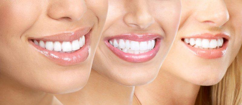 Современная реставрация зубов по новейшим технологиям