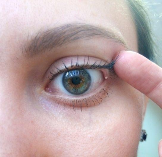 Белый прыщ на глазу – почему появляется и как избавиться