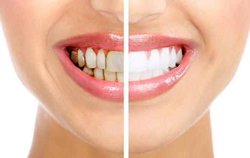 Как происходит отбеливание зубов